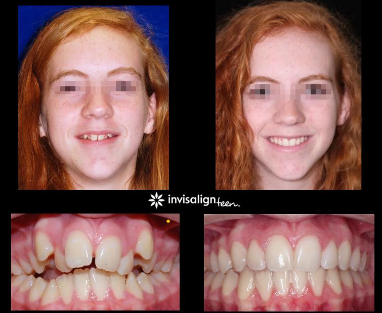 Zähne krumme Kreidezähne: Symptome,