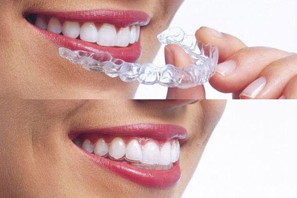 Edelstahl Dental Draht Professionelle Zahnarzt Draht Kieferorthopädische Für Zähne Korrektur Zahn Kieferorthopädie Chirurgische Instrumente Zahnaufhellung Mundhygiene